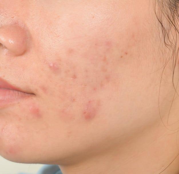 Tratamiento para acné – Seis Sentidos