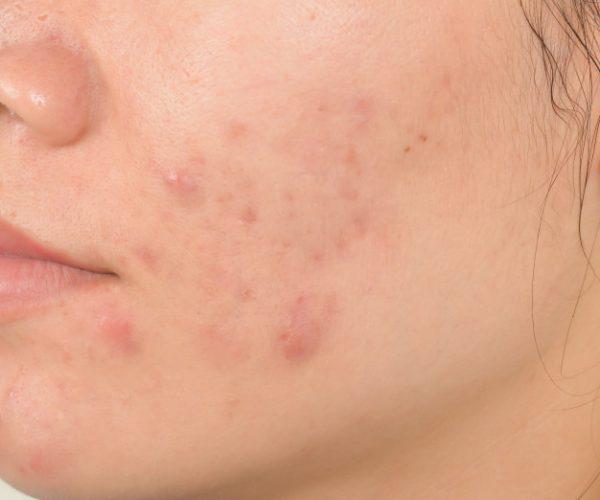 cicatriz-acne-cara_46178-30