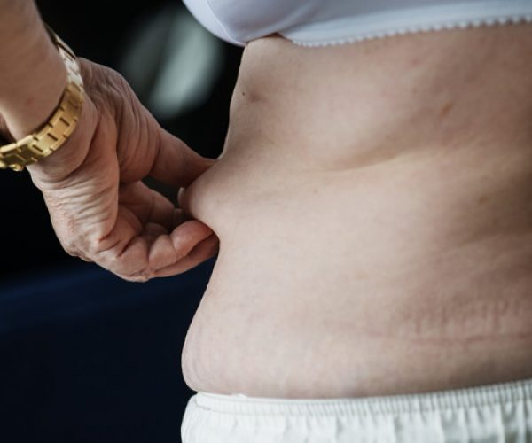 Closeup of obese elderly woman